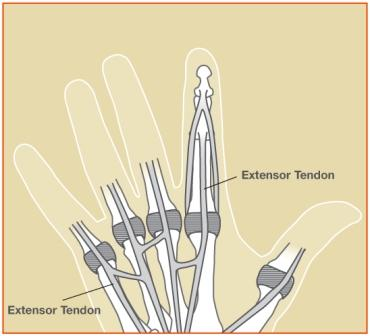 Extensor1 Image 1